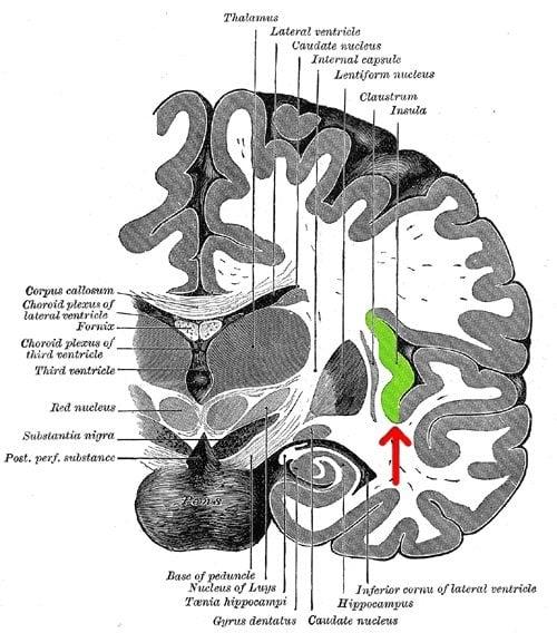 Schizophrenia Symptoms Linked to Faulty 'Switch' in Brain