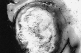 This is a brain slide with a giant cell glioblastoma brain cancer tumor.