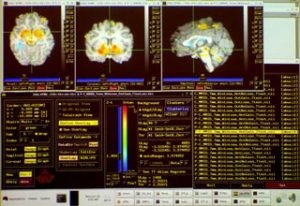 The image shows the MRI brain scans used in this study.