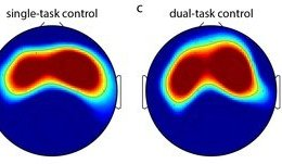The image shows the scalp topography associated with the research. The caption best describes the image.