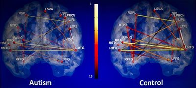 The image shows the brain scan results for autism associated with the research.