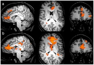 Personal Reflection Triggers Increased Brain Activity ...