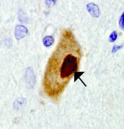 The image shows motor neurons in an ALS patient.
