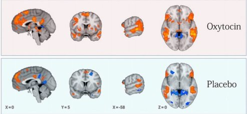 These brain scans shows the impact of oxytocin.