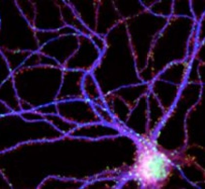 This image shows a mouse neuron with synapses.