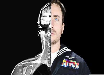 The image is a self portrait of Jonathan David Chandler. One half of the image shows him in his military uniform and was taken while receiving treatment for TBI suffered while serving in Afghanistan. The second half is an MRI scan.