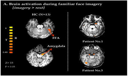 This is an fMRI of a patient in a vegetative state.