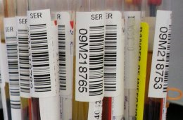 This image shows some blood samples in test tubes.