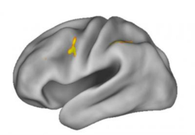 The image shows the location of the dorsal anterior premotor cortex in the brain.