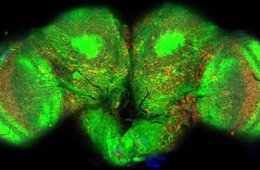 This image shows a stained section of the fly brain with the amyloid beta shown in red.