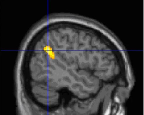 This scan shows the location of the TPJ in the human brain.