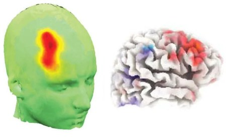 The image shows the location of the frontal cortex in the brain.