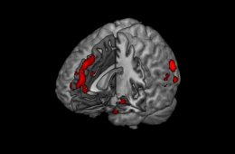 The fmri brain scan image shows the areas affected when making a moral judgement.