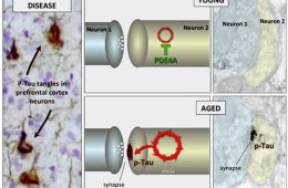 this shows the neuronal changes in alzheimers.