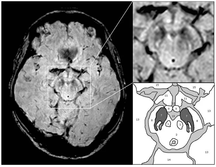 Tell Tail Mri Image Diagnosis For Parkinsons Disease Neuroscience