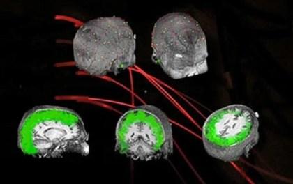 This image shos neuroimaging brain scans.