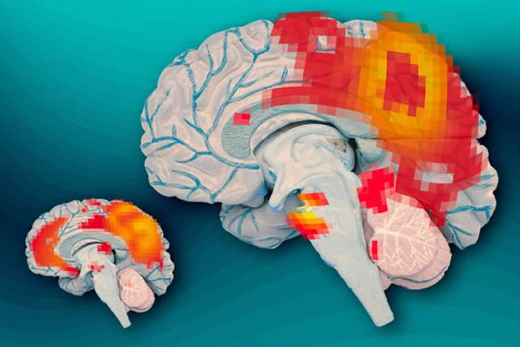 This image shows the brain activity recorded in those with ADHD.