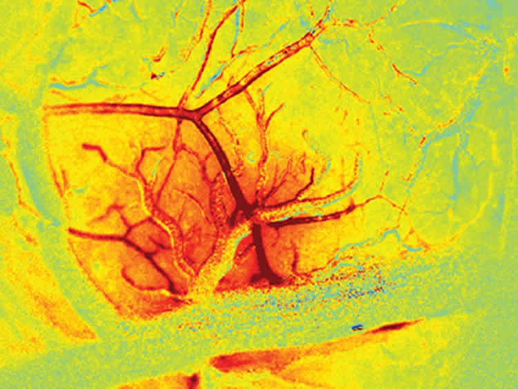 This image shows the increased bloodflow in the brain.