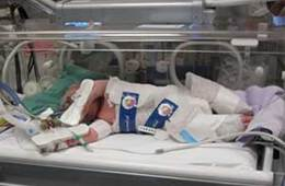 The image shows a new born baby being cooled in an incubator.