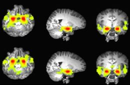 The image shows fMRI scans wiht the amygdala and prefrontal cortex highlighted in yellow.
