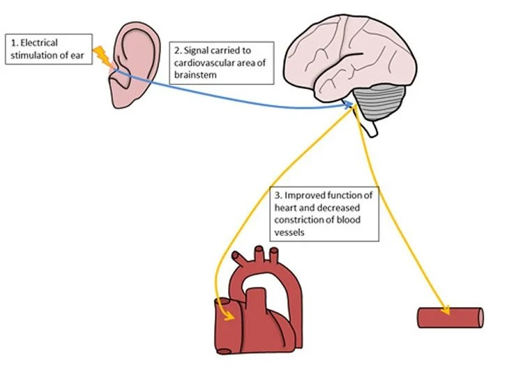 This image is a diagram showing how the electrical stimulation of the ear is carried to the CV area of the brain and down to the heart.