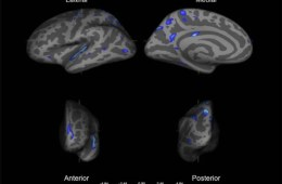 The image shows the mri scans from the study.