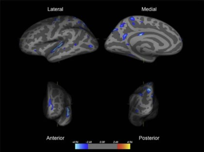 Mri Shows Brain Differences Among Adhd >> Orphanage Care Linked To Thinner Brain Tissue In Regions Related To