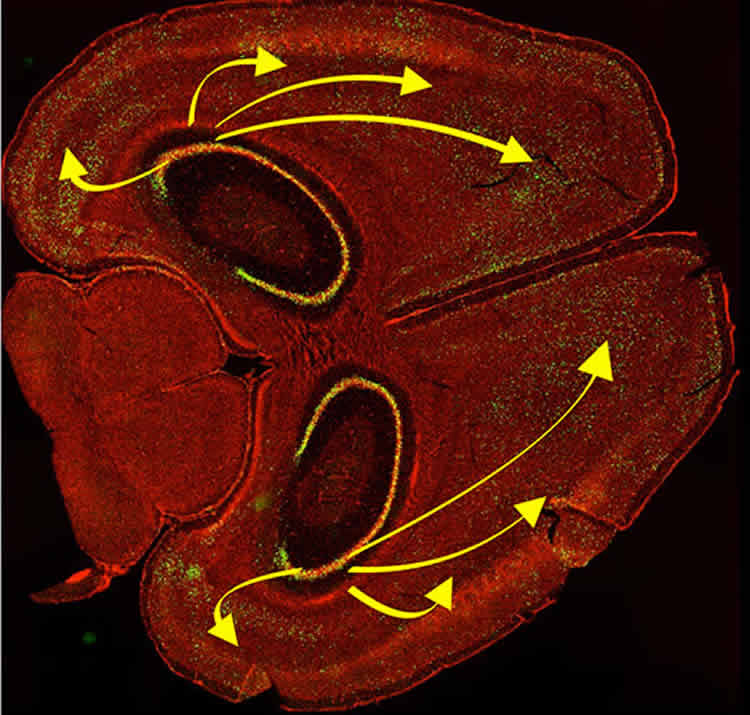 This image shows a brain slice of the hippocampus.