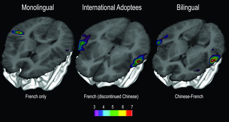 This image shows 3 fMRI brain scans showing activity in monolingual, bilingual and international adoptee brains.