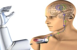 This is a drawing of a person with a prosthetic arm. You can also see brain implants.