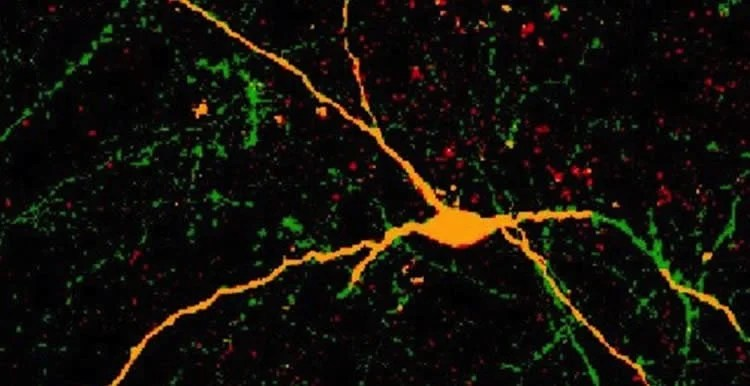 This image shows one of the interneurons derived from hpscs.
