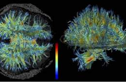 This image shows the structure of white matter in the brain.