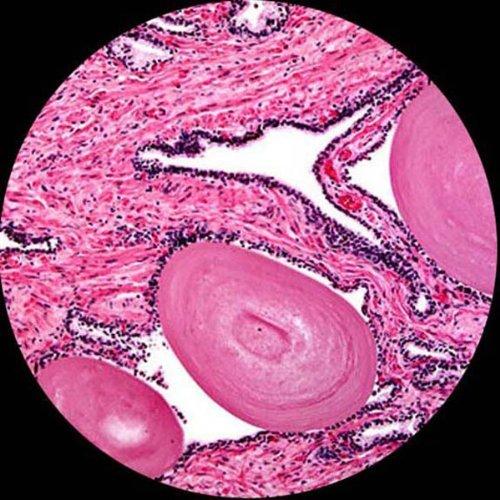 amscope ps25 prepared microscope slide set for basic biological