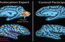 The image shows a collection of 4 fMRI images showing the neural activity in a person using echolocation.