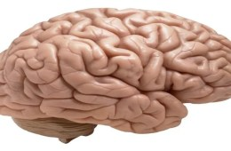 The image shows a plastinated healthy brain.