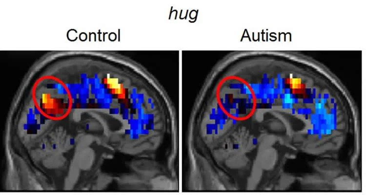 The image shows MRI brain scans of a person with autism and a control test subject. The scan reveals the neural activity when the person is hugged.