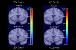 The image shows PET scans pf male and female smokers brain taken from the study.