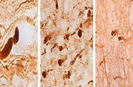 The image microscopic views of brain slices with tbi related damage.