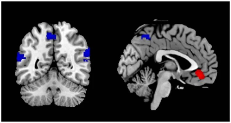 This image shows fMRI brain scans taken from the study.
