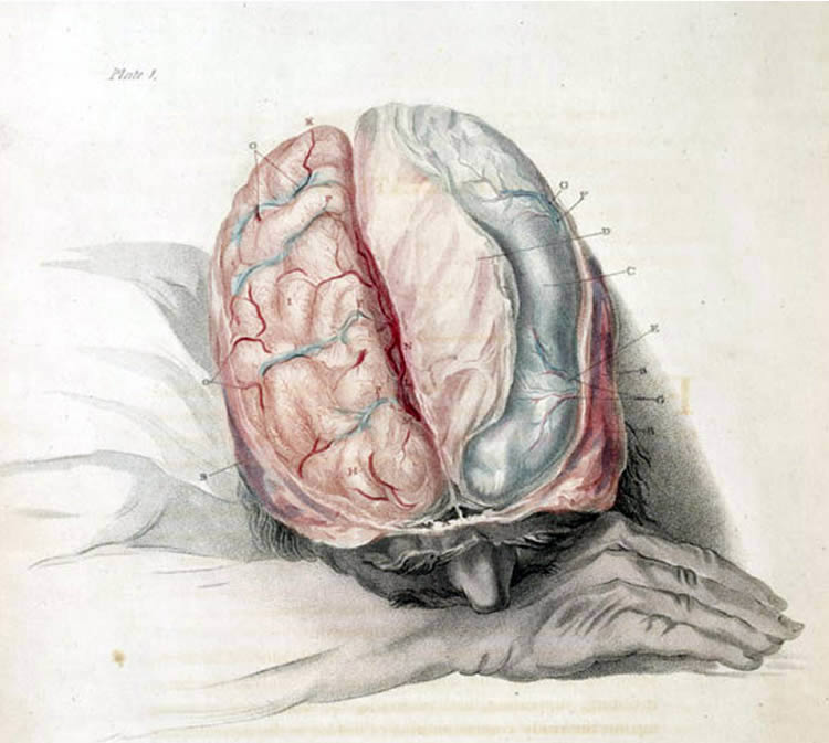 Sleep Disturbing 'Exploding Head Syndrome' More Common in Younger People Than Thought