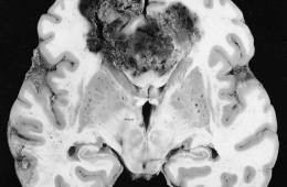 This is a brain slice with a glioblastoma brain tumor showing in it.