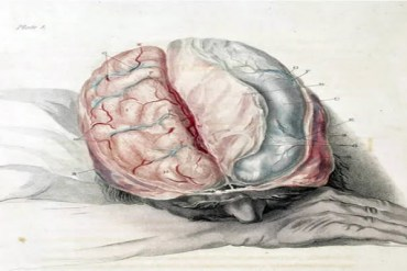 This illustration shows a sleeping man with his brain exposed.