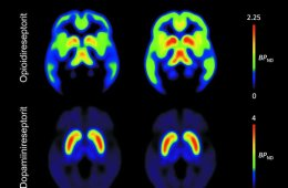 This image shows four PET brain scans associated with this study.