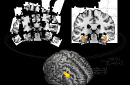 This shows brain scans taken from the study. One of the scans is broken down into jigsaw pieces.