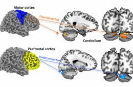 This image shows the fMRI scans which demonstrate the over and underconnectivity in the brain of children with autism.