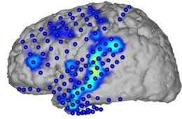 This image shows brain activity recorded by electrocorticography (blue circles). From the activity patterns (blue/yellow), spoken words can be recognized.