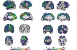 This image shows brain scans of people with Down syndrome.
