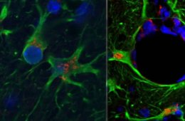 This image shows astrocytes expressing ccl2.
