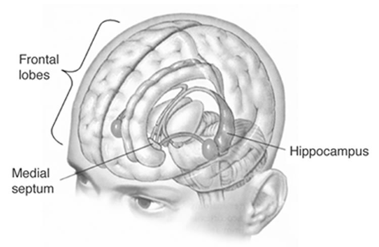 Smaller Hippocampus in Brains of Patients with Recurrent ...