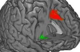 This image shows a brain with the insula highlighted.